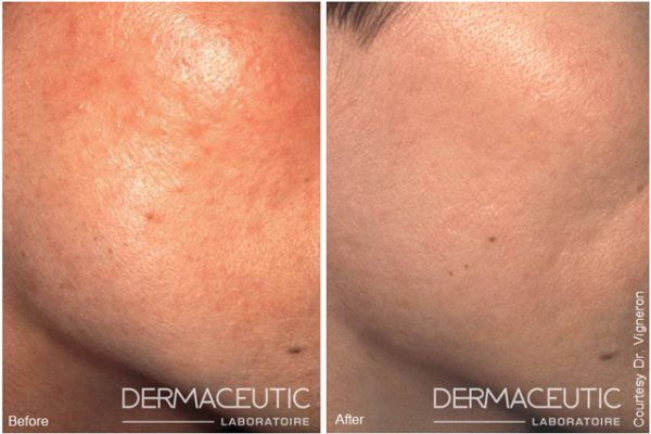 Dermaceutic-MASK-PEEL-2 (1)