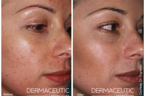 Dermaceutic-MILK-PEEL-ACNE-PRONE-SKIN (1)