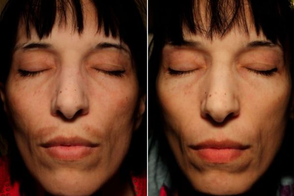 Dermaceutic-Mela-peel1 (1)