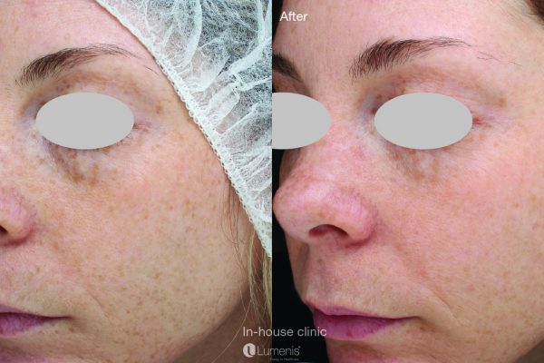 Stellar-M22_IPL_Skin-rejuvenation_In-house-clinic_2m3t