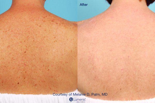 Stellar-M22_IPL_Skin-rejuvenation_Palm-2_3m2t